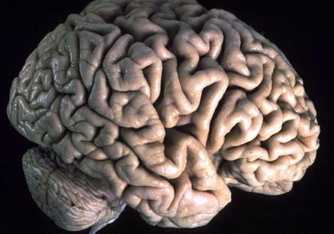 Cervello_di_profilo
